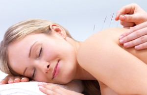 Back Pain Dry Needling Therapy